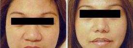 asian-rhinoplasty-p1-1