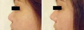 asian-rhinoplasty-p1-2