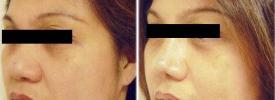 asian-rhinoplasty-p1-3