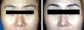 asian-rhinoplasty-p2-1