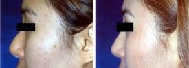 asian-rhinoplasty-p2-3