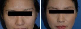 asian-rhinoplasty-p5-1