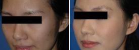 asian-rhinoplasty-p5-2