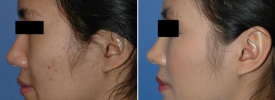 asian-rhinoplasty-p5-5