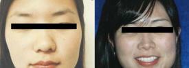 asian-rhinoplasty-p6-1