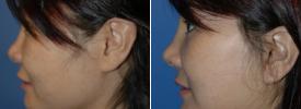 asian-rhinoplasty-p7-3
