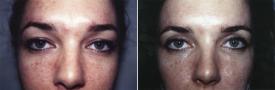 blepharoplasty-p1