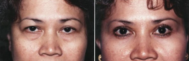 blepharoplasty-p3