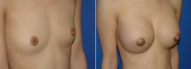 breast-augmentation-p1-2