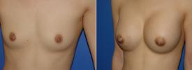 breast-augmentation-p1-4