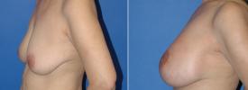 breast-augmentation-p13-4