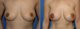 breast-augmentation-p18