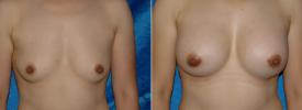breast-augmentation-p2-1