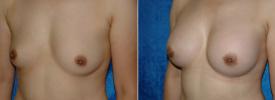 breast-augmentation-p2-3