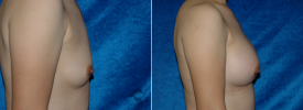 breast-augmentation-p2-5