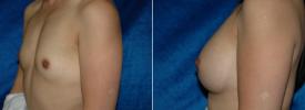 breast-augmentation-p3-2