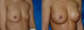 breast-augmentation-p4-2