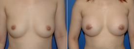 breast-augmentation-p5-1