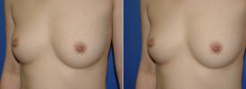 breast-augmentation-p5-3