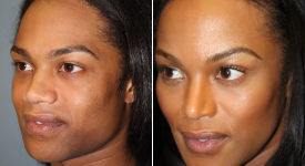 forehead-brow-lifts-p1-3