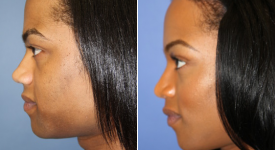forehead-brow-lifts-p1-5