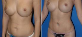 liposuction-p2-3