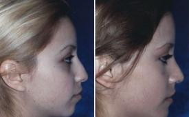 rhinoplasty-p1-4
