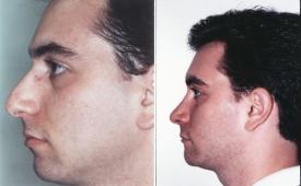 rhinoplasty-p4-2